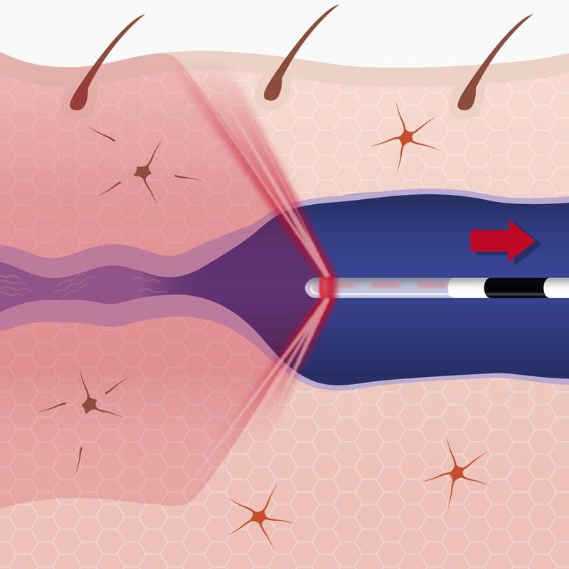 Endovenöse Therapie Vergleichsgrafik: 1470 nm –herkömmlicher Laser